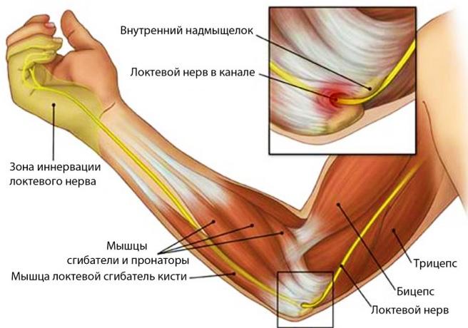 Эпикондилит локтевого сустава: лечение мазями и народными средствами