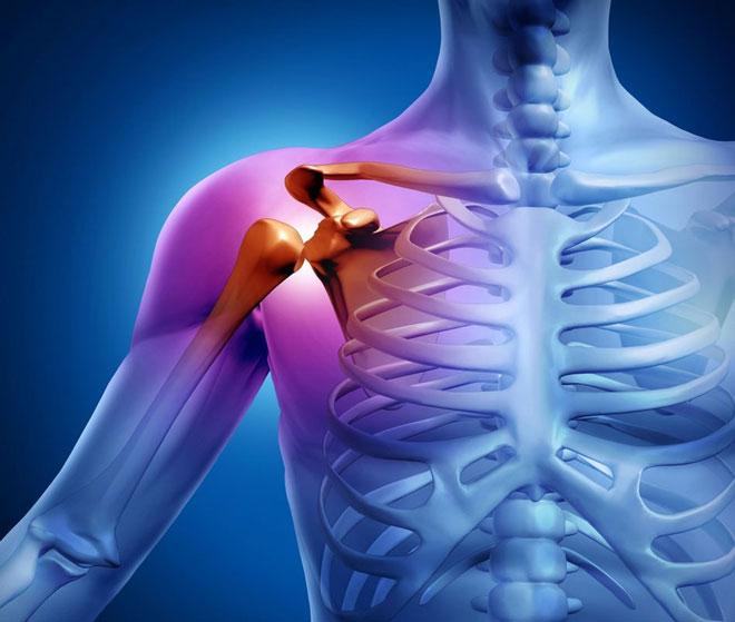 Артрит плечевого сустава массаж