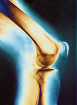 Ревматоидный артрит и аюрведа