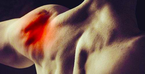 Артрит плечевого сустава – симптомы