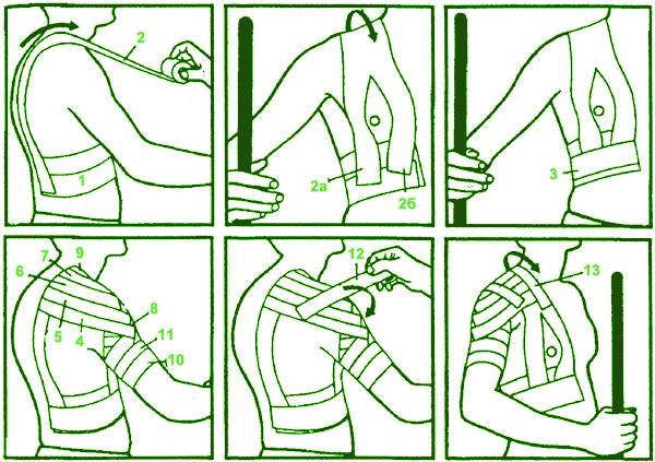 Техника правильного тейпирования плечевого сустава