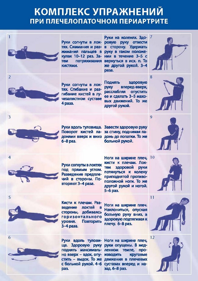 Комплекс упражнений при плечелопаточным периартрите