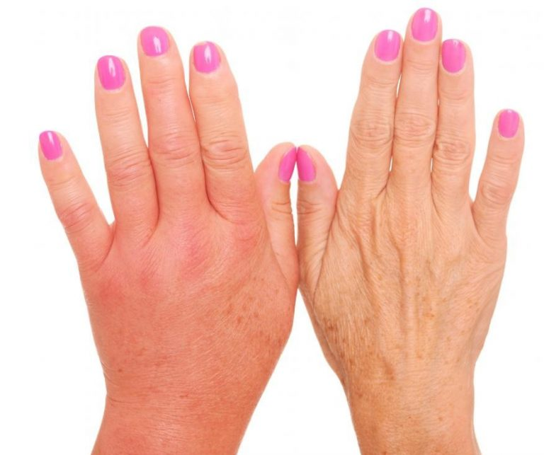 Отечность пальцев рук