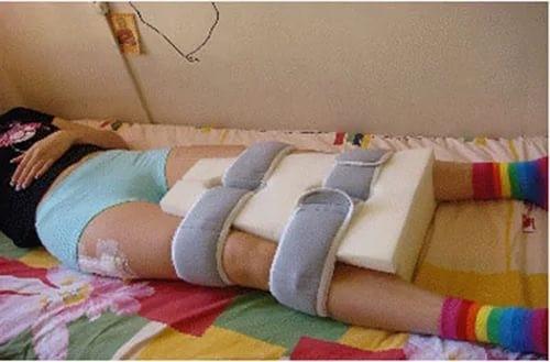 После операции эндопротезирования тазобедренного сустава