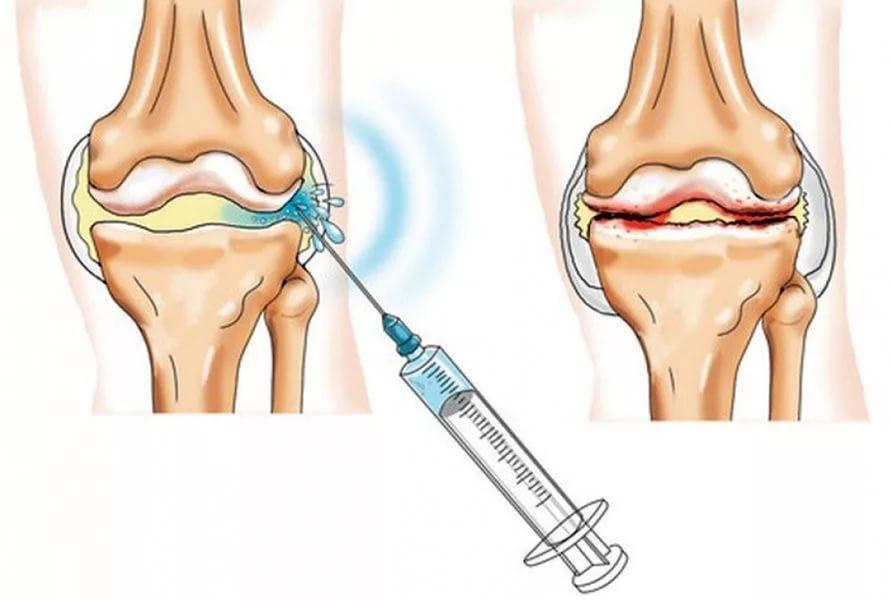 Изображение - Какие уколы делают в сустав колена elene7663_04-03-2017-22-55_ukoly_v_kolennyj_sustav