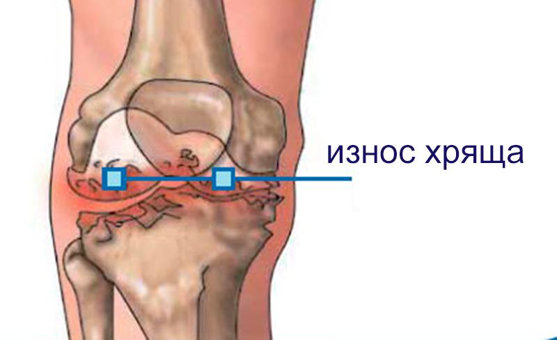 операция на ложный сустав