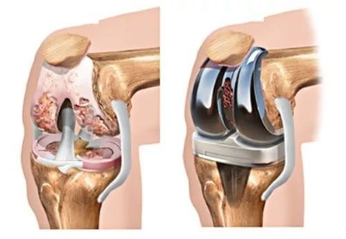 Суставы искуственные коленный первая помощь при растяжении связок коленного сустава