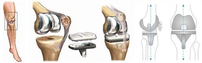 Изображение - Эндопротезирование коленных суставов отзывы и осложнения elene7663_06-03-2017-22-15_endoprotezirovanie_kolennogo_sustava_otzyvy_pacientov3