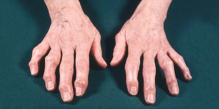 Анатомия суставов кисти и пальцев рук