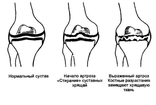 Классификация артроза рук