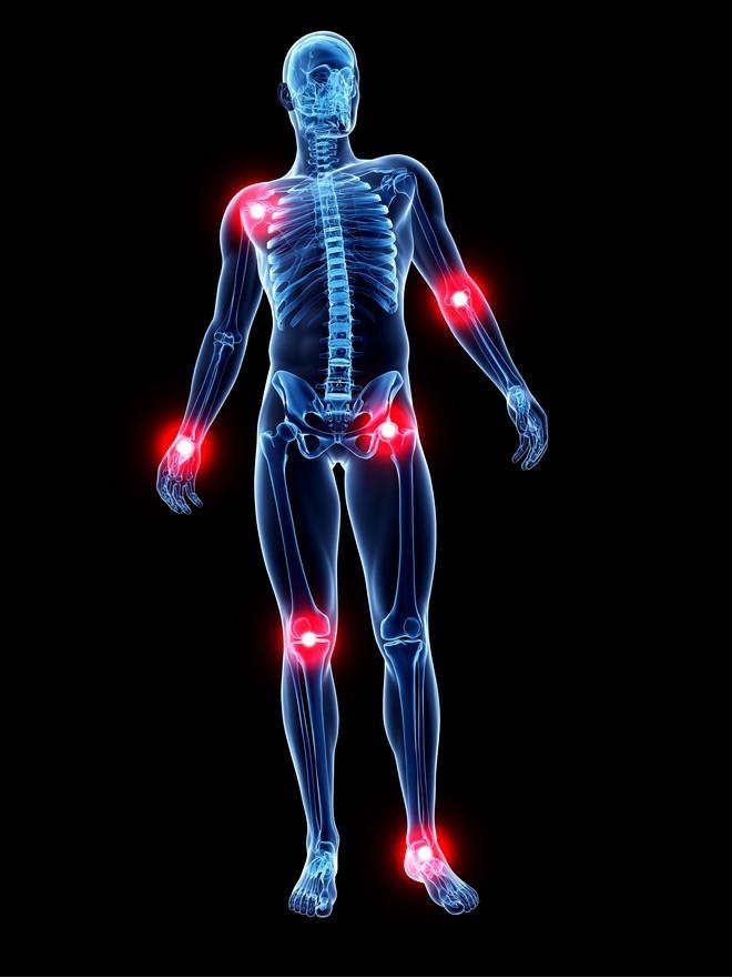 Лечение суставов мазью