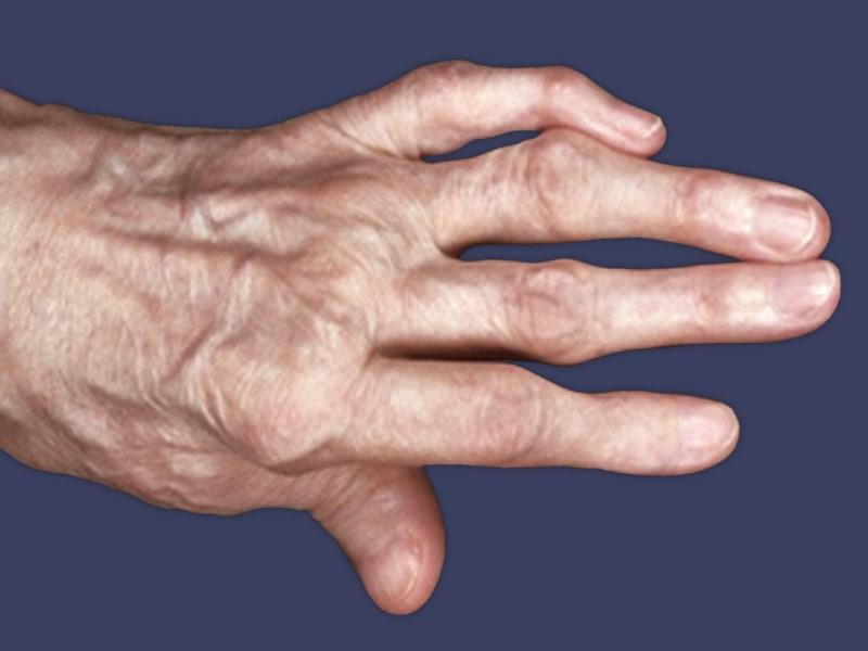 Артрит большого пальца стопы