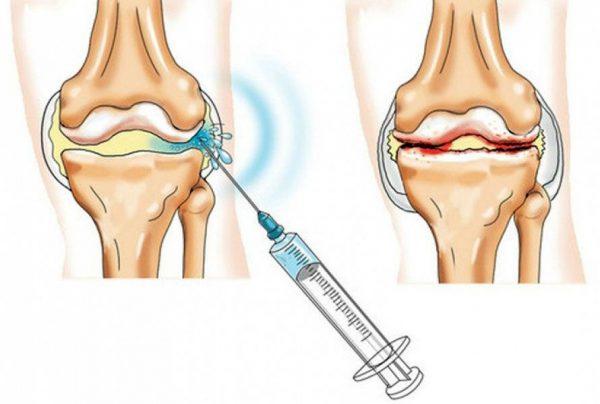 Препараты для блокады коленного сустава