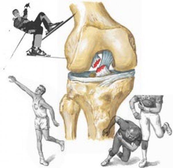 Патологические изменения в суставах и связках