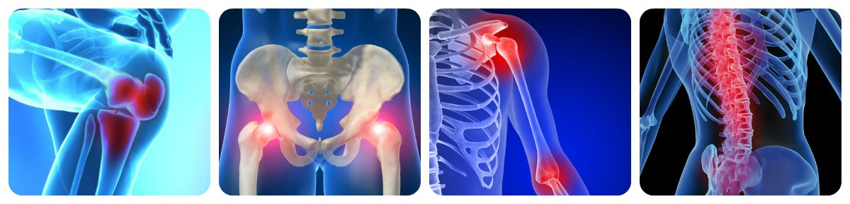 Лекарственные препараты для лечения артрита суставов