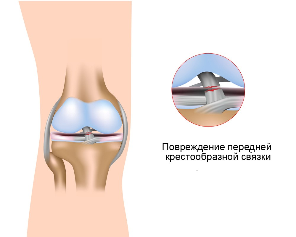 anterior cruciate ligament injury Anterior cruciate ligament injury overview the anterior cruciate ligament (acl) is an important stabilizing ligament in the knee it is frequently injured by athletes and trauma victims in the united states alone, there are between 100,000 and 200,000 acl tears per year.