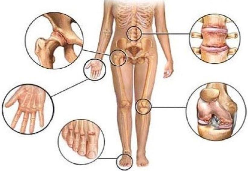 Артрит симптомы лечение народные средства диета