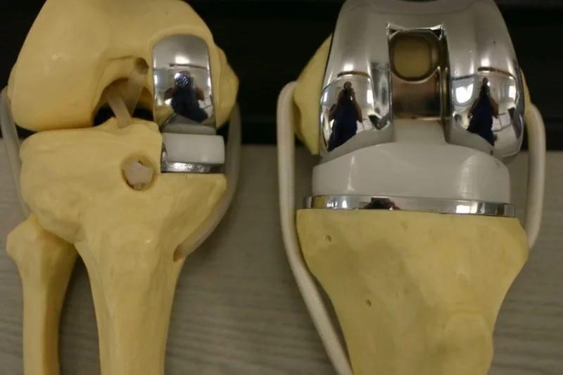Цены на протез сустава отзывы по заменена коленный сустав