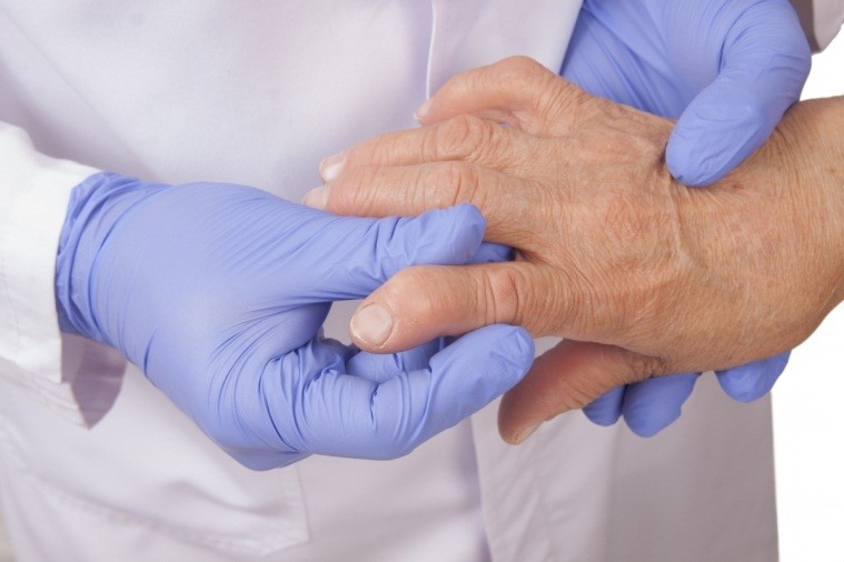 Как правильно лечить реактивный артрит