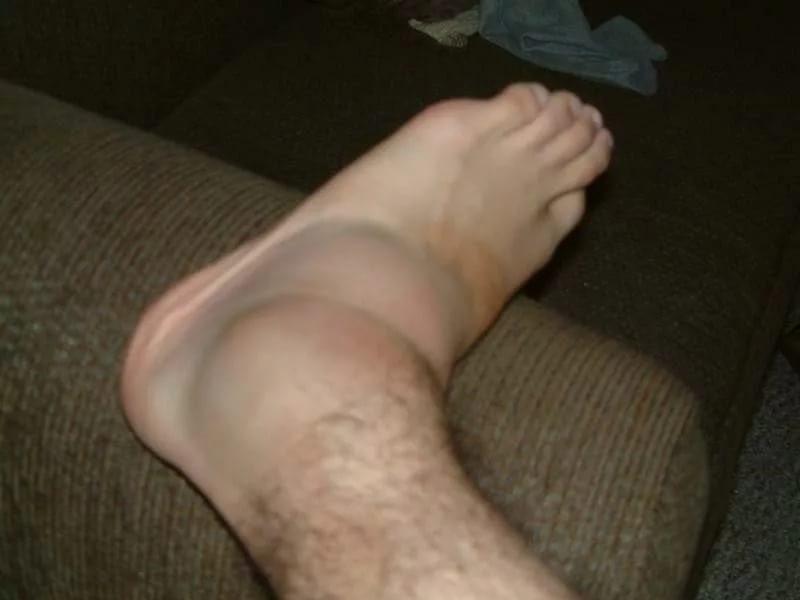 Как снять отек ног при артрите
