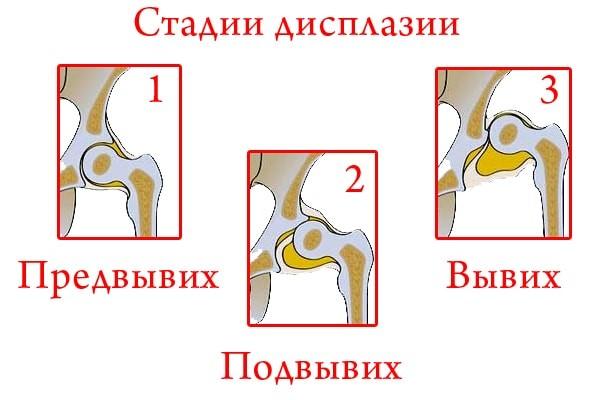 Что такое дисплазия суставов
