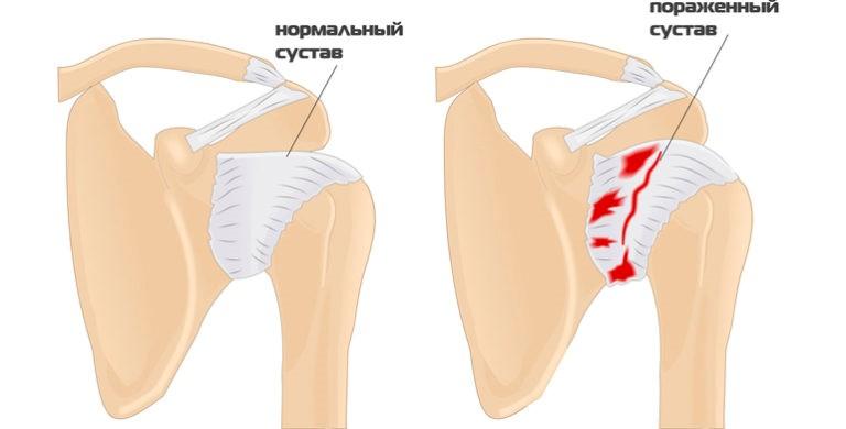 Остеоартроз плечевого сустава 2 степени лечение