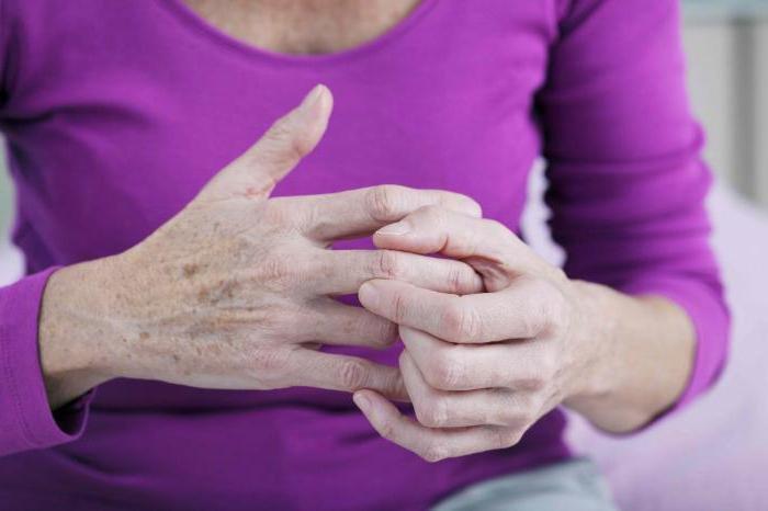 Артроз межфаланговых суставов кистей рук