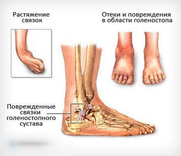 Повреждение связок голеностопного сустава Почему оно происходит и как лечится