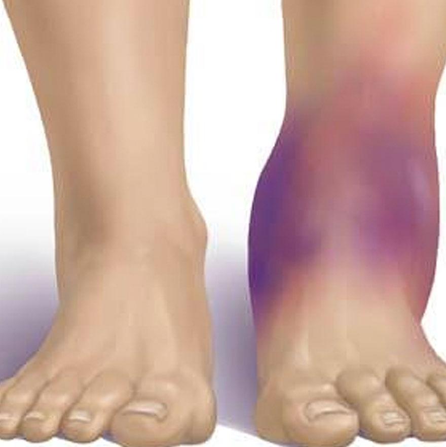 Симптомы при повреждении голеностопа