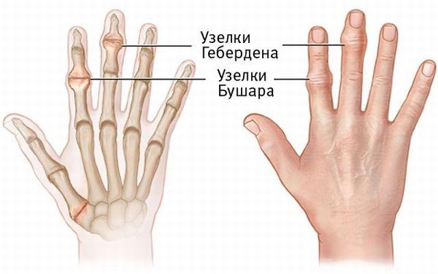 Симптомы ризартроза