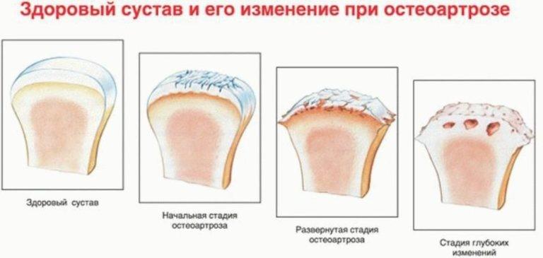 Классификация полиостеоартроза