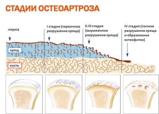 Стадии шейного спондилоартроза