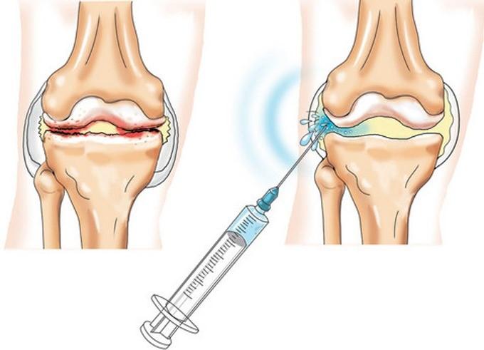 Артроз плечевого сустава причины симптомы степени и лечение артроза плечевого сустава