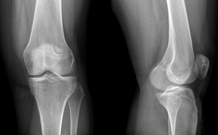 Рентген коленного сустава что показывает