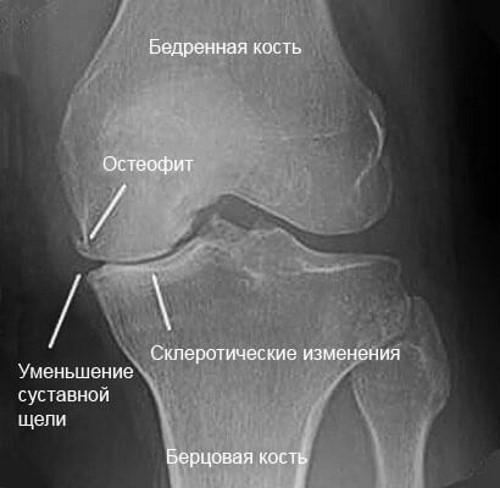 Дегенеративно-дистрофические процессы в суставе
