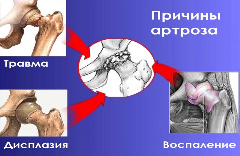 Артроз бедренного сустава