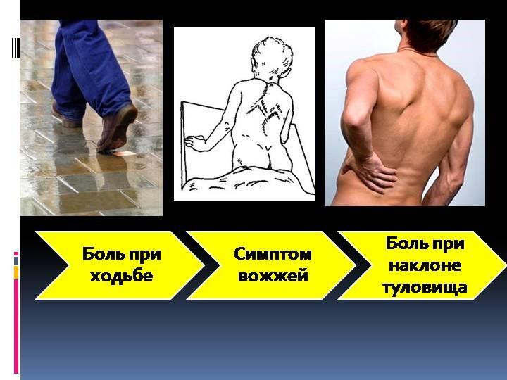 Симптомы туберкулеза костей и суставов