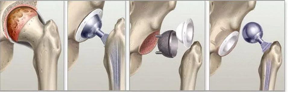 Восстановление после эндопротезирования тазобедренного сустава