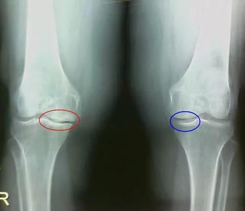 Воспалительные процессы в суставных тканях