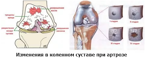 Изображение - После уколов кальция глюконат болят суставы artroz-kolena