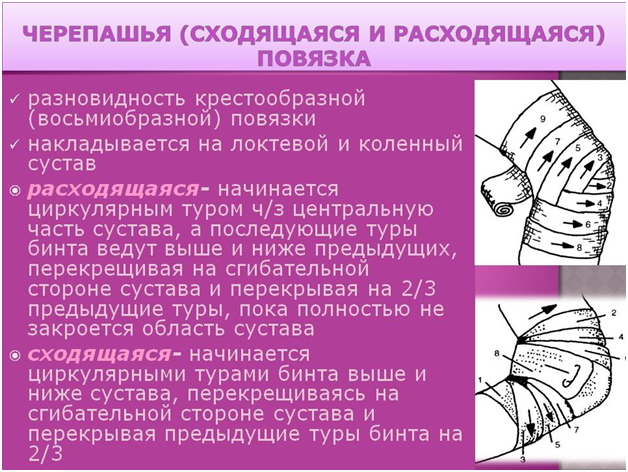Изображение - Лангетка на локтевой сустав cherepashya-povyazka-1