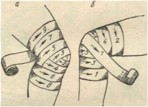 Изображение - Ортез на коленный сустав с боковой поддержкой cherepashya-povyazka-na-koleno-1