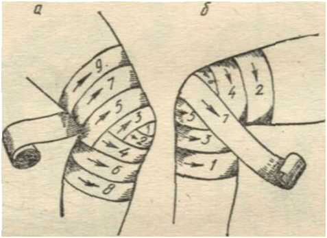 Черепашья повязка на колено