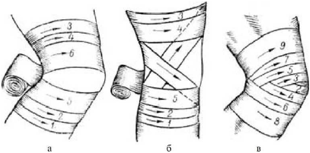 Наложение расходящейся черепашьей повязки на колено