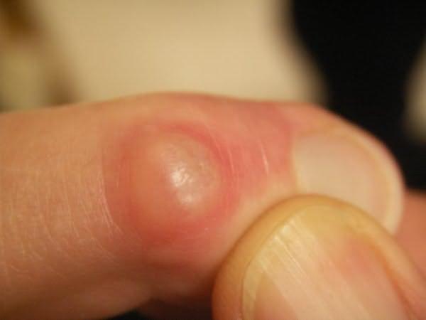 Изображение - Как уменьшить суставы на пальцах рук gigroma-na-paltsah-ruk