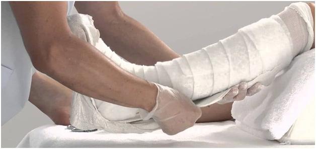 Наложение лангеты на ногу