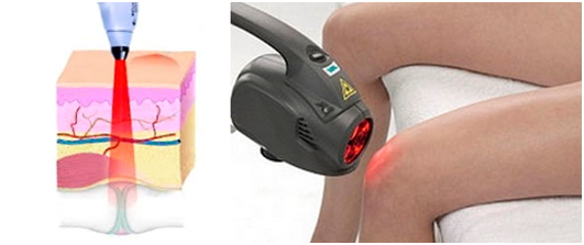 Воздействие лазера на больной коленный сустав