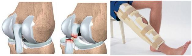 Лечение разрыва коленного мениска