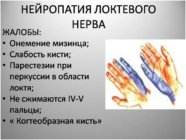 2. Нейропатия локтевого нерва