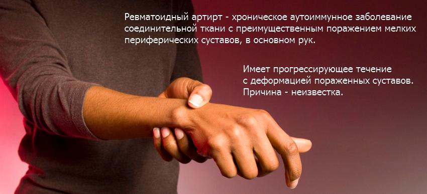 Изображение - После уколов кальция глюконат болят суставы revmatoidnyi-artrit